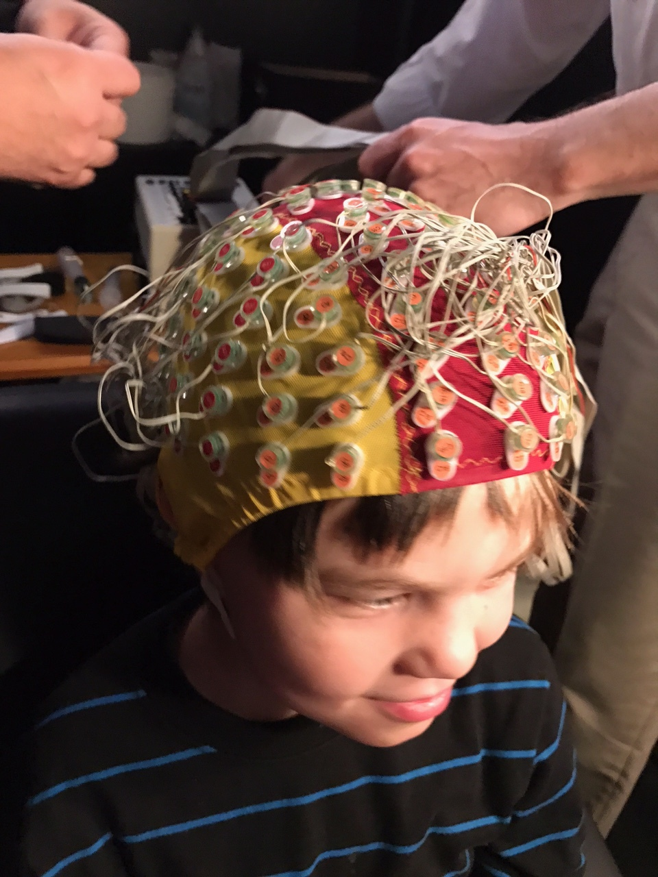 Specialized EEG with over 100 leads!