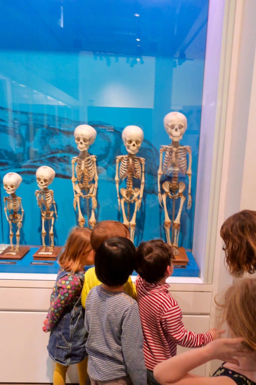"Are these skeletons real? The answer is, ""Yes."" Are they dead? The answer is ""Yes."""