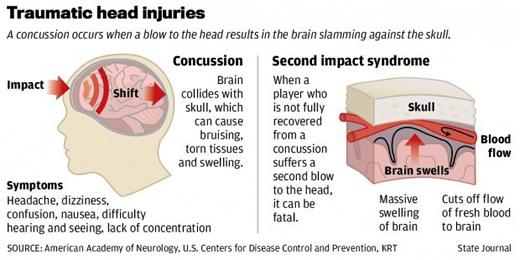 concussion1.jpeg