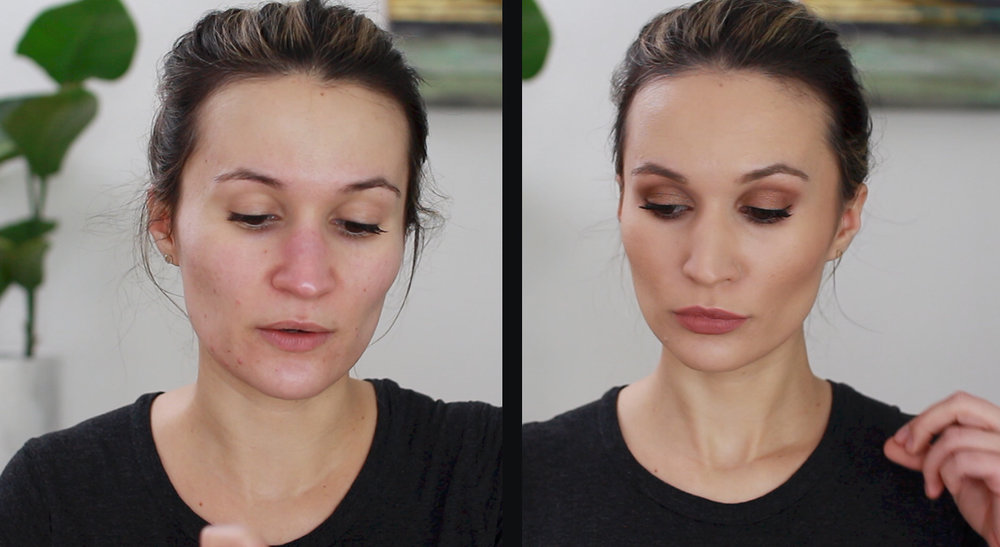 left - skin before foundation // right - after, with foundation and rest of face makeup, no setting powder
