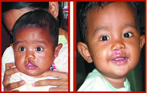www.senyumbali.org