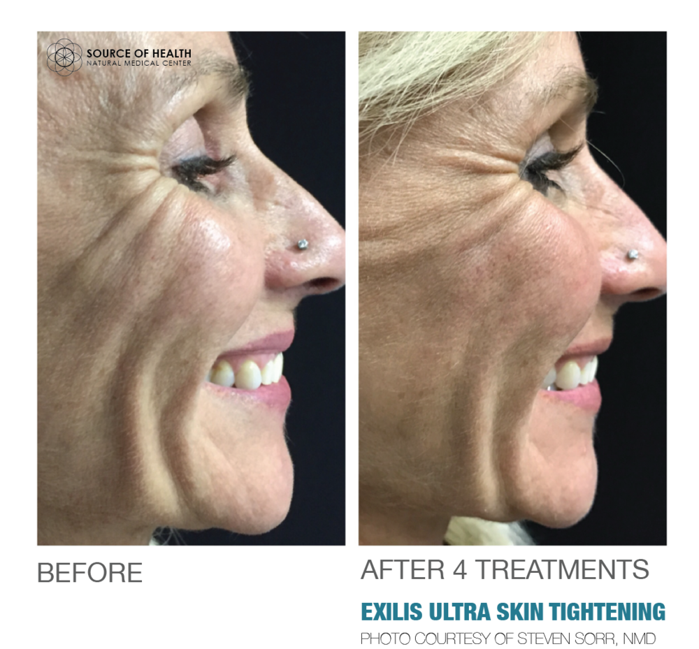 EXILIS ULTRA SKIN TIGHTENING SOURCE OF HEALTH