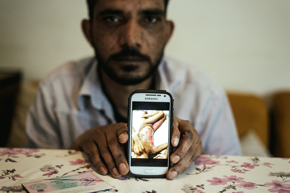 M., from Pakistan, shows a picture of his daughter, burnt in gas bottle explosion, Hausham, Germany, 2015
