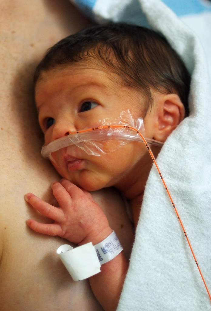 preemie on oxygen being held skin to skin by mother in NICU