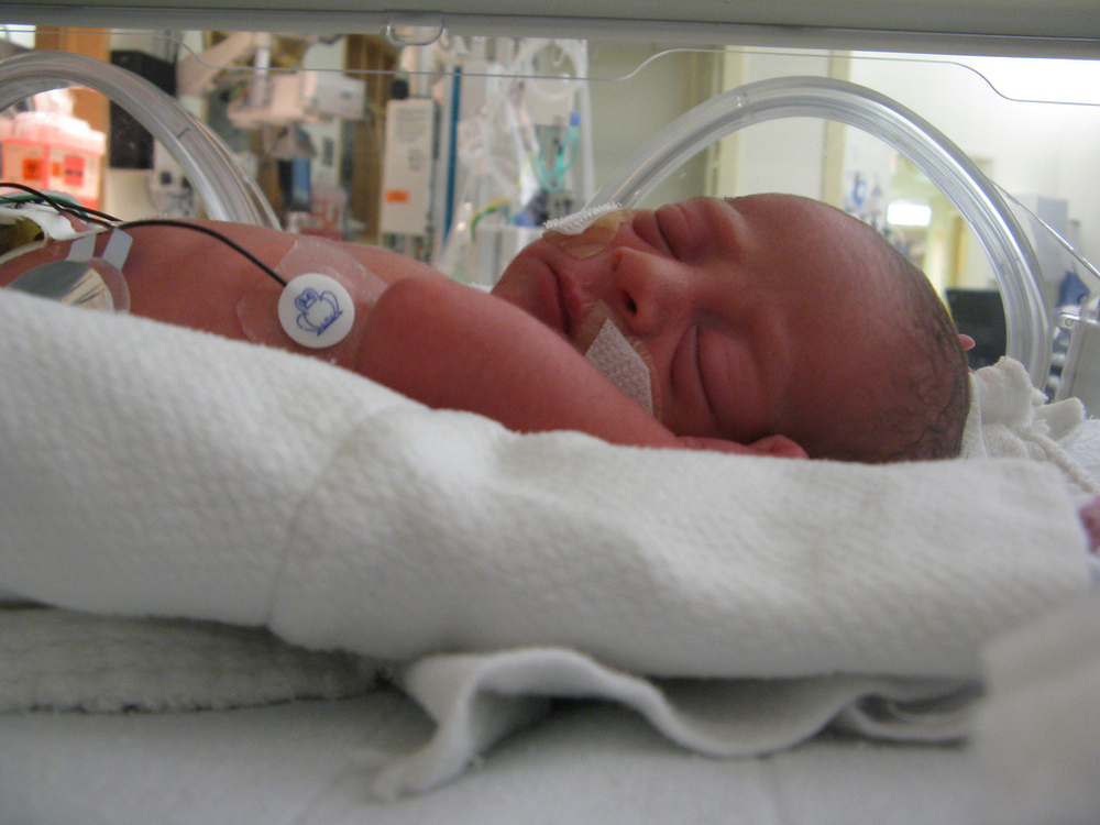 preemie in isolette in NICU