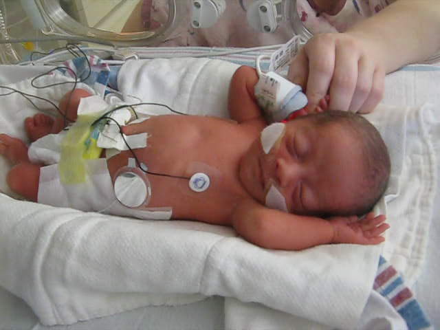preemie with pulse ox