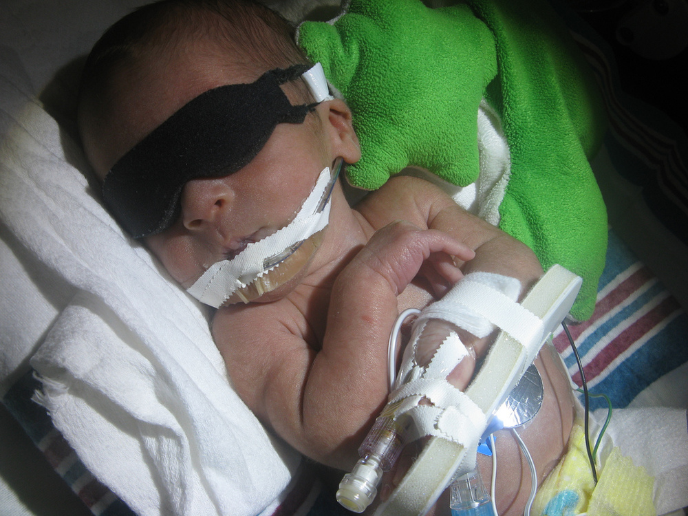preemie with IV and phototherapy mask
