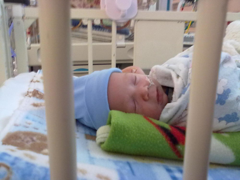 Morgan preemie with NEC in NICU sleeping with NG tube