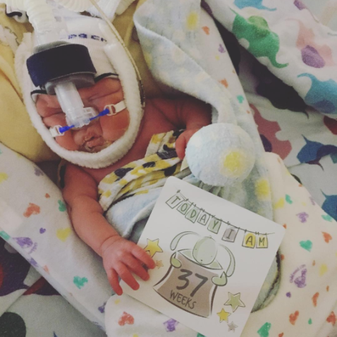 preemie with milestone cards for NICU