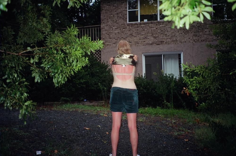 izzy sunburn.JPG