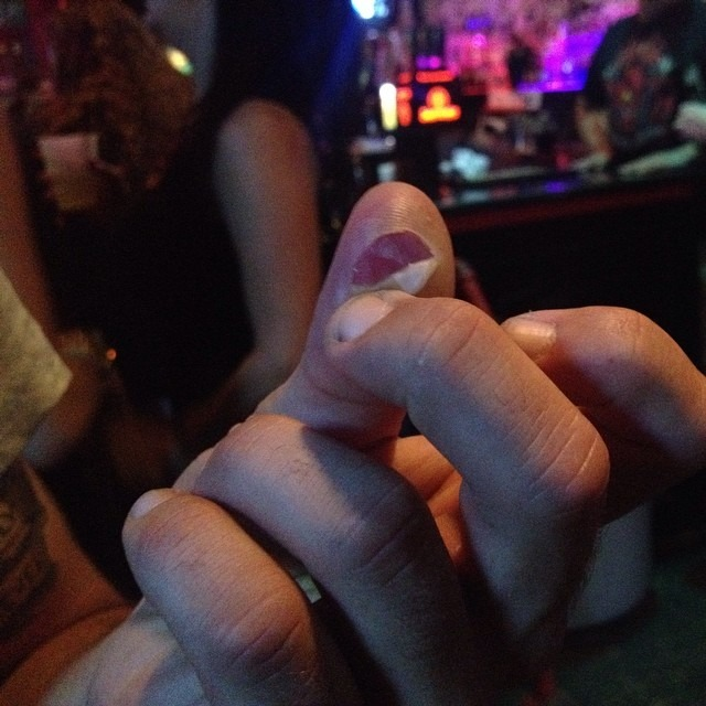 And sometimes this happens … #rocknroll #blister #drummerproblems Thank you #BoilerRoom and #deepellum #dallas #dank #uneasypilgrim #formoftruth