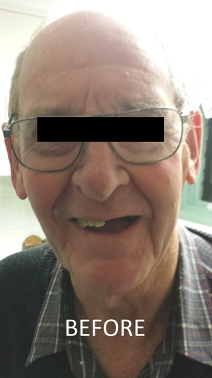 CHROME PARTIAL DENTURE ADELAIDE