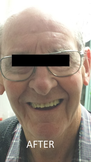 METAL PARTIAL DENTURES ADELAIDE