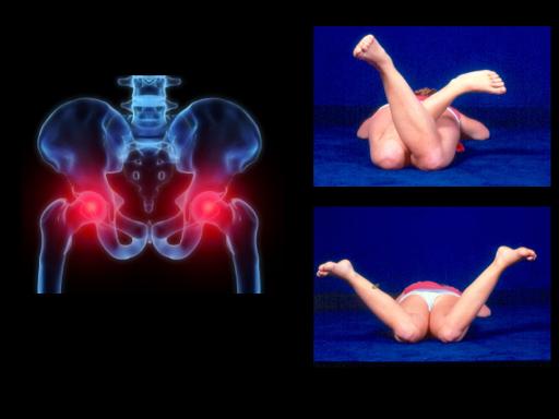 Ortopedia Pediátrica Prof. Dr. Roberto Guarniero