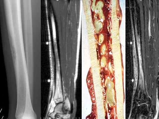 Osteomielites Prof. Dra. Ana Lúcia L.M. Lima