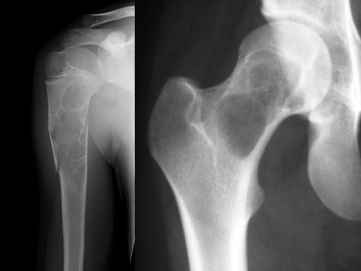 Diagnóstico e Tratamento dos Tumores Músculos-Esqueléticos Prof. Dr. Olavo Pires de Camargo