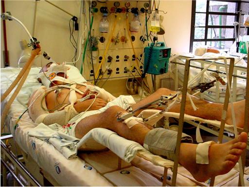 Complicacões do Tratamento das Fraturas Dr. Alexandre Leme Godoy