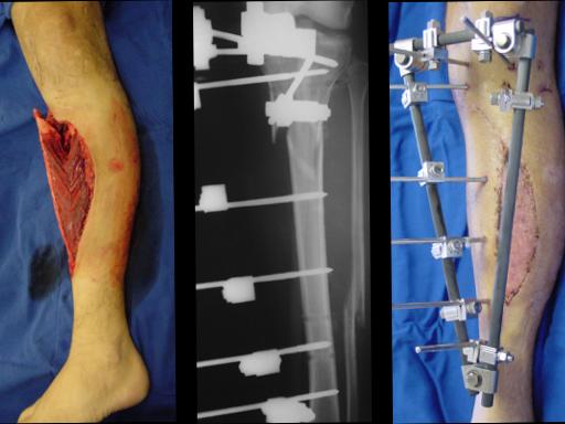 Tratamento Cirúrgico das Fraturas Expostas   Prof. Dr. Rames Mattar Junior