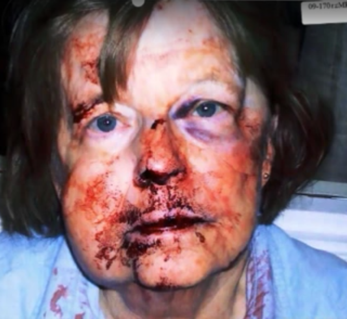 Mary Shepard after her attack, which occurred inside her church.
