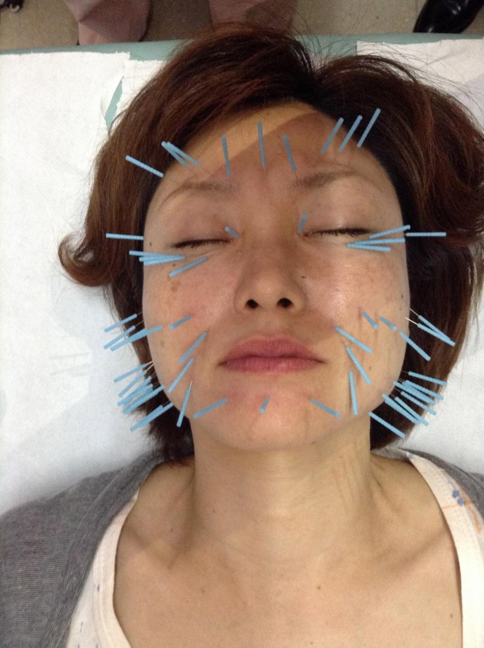"""Résultat de recherche d'images pour """"kitagawa acupuncture faciale"""""""