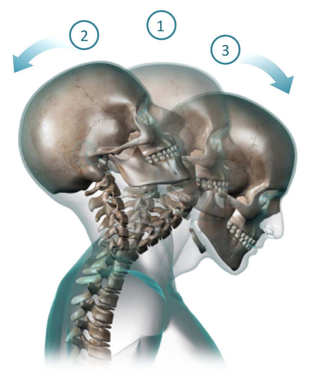 Motor Vehicle Accident - Neck injury caused by whiplash is the most common injury among car occupants after a motor vehicle accident. This can lead to Chronic Whiplash-Associated Disorder.Conservative treatment includes Physical therapy. This is usually followed by Epidural Steroid Injection (ESI) or Medial Branch Block if needed.