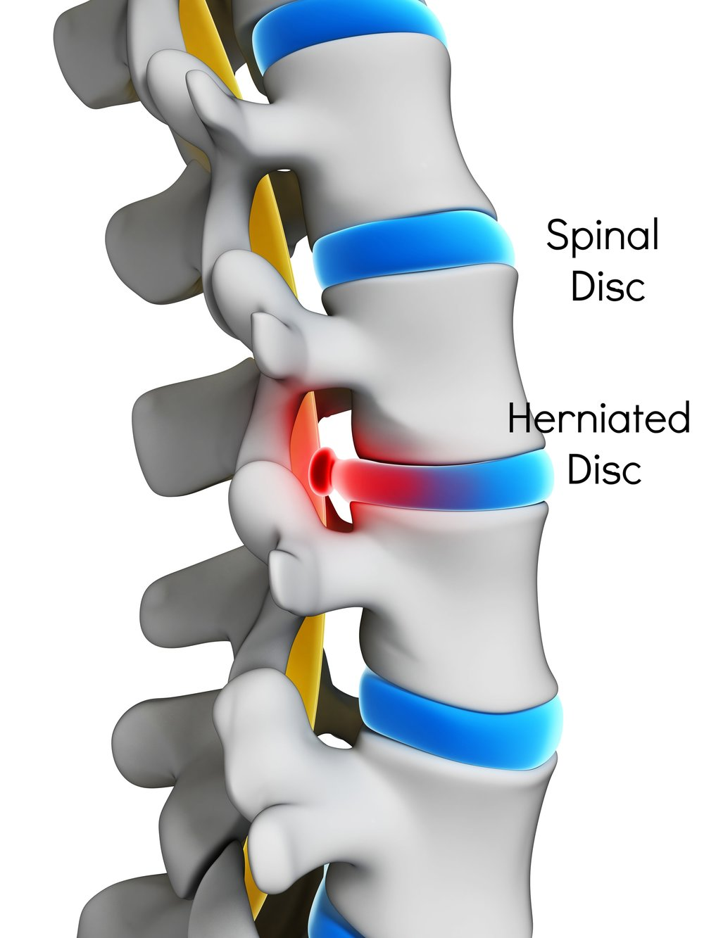Intervertebral or Spinal Disc - It is a rubbery disc that lies between adjacent vertebrae in the spine, acting as cushions that facilitate movement. The degeneration of spinal disc is one of the most common causes of back & neck pain. Herniated or rupture discs can 'pinch a nerve' causing neck pain running down the arms, back pain running down the legs, or Sciatica.