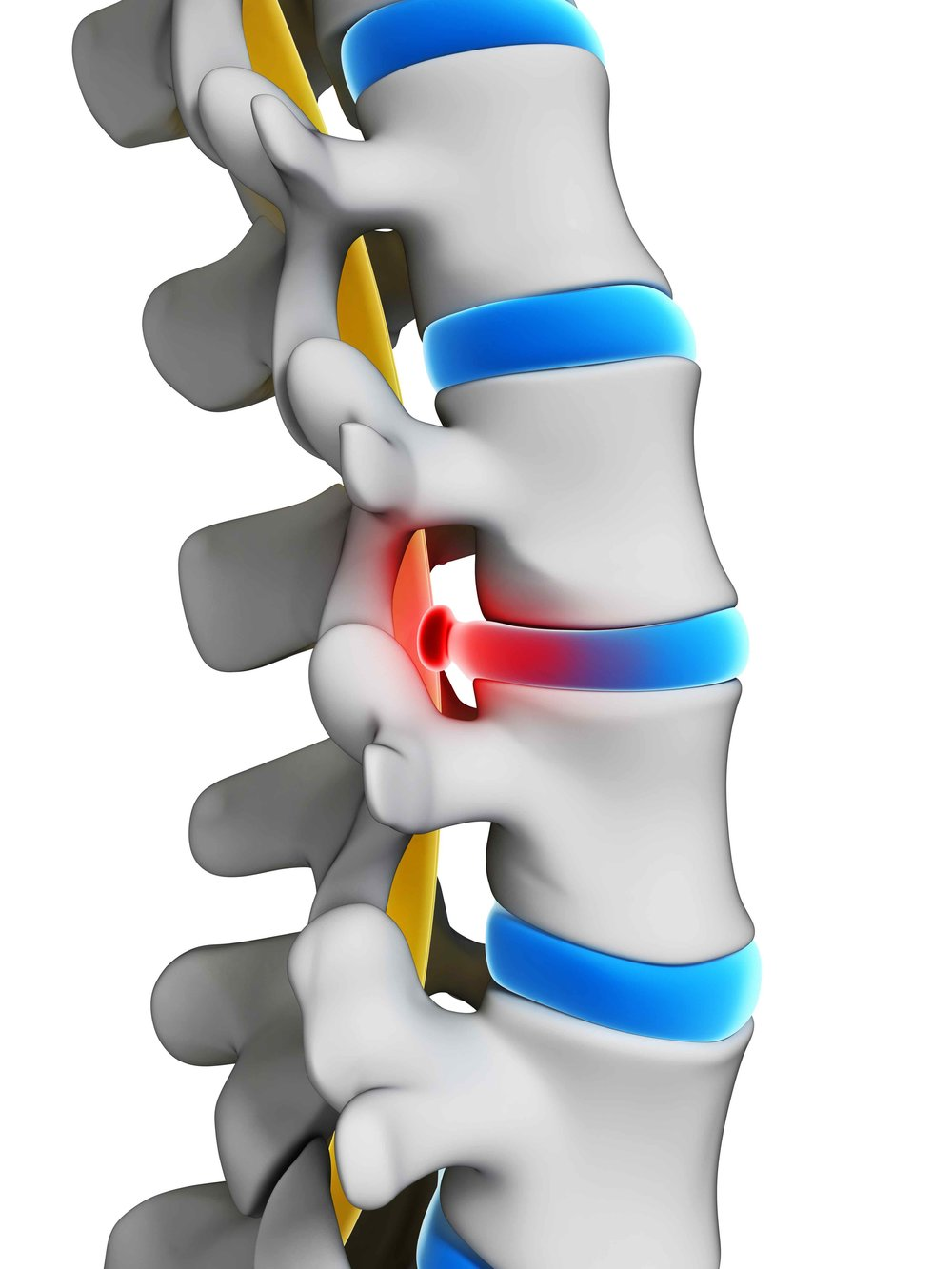 Herniated Disc - Herniated or ruptured discs can occur when the rubbery discs between the spinal bones (vertebrae) become compressed and bulge outward or rupture (herniation), causing back pain, leg pain and sciatica. This condition is commonly treated with Epidural Steroid Injection (ESI). In certain severe cases, part of the disc may need to be cut-out, a procedure known as Discectomy.