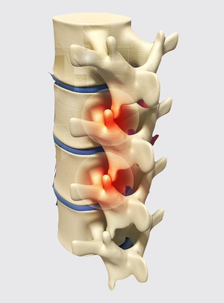 Facet Joint Disease - Spinal or Facet joints are the joints that connect adjacent spinal bones (vertebrae). These joints commonly develop disease by years of repetitive strain, disc degeneration or minor trauma. This can lead to back or neck pain.This condition is commonly treated with Medial Branch Block usually followed by Radiofrequency Ablation if Medial Branch Block is effective.