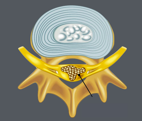 Spinal Canal Narrowing - Spinal stenosis is a narrowing of the spaces within your spinal canal that can put pressure on the nerves that travel through the spine. Spinal stenosis occurs most often in the lower back and the neck. Pressure on the spinal cord and nerves can cause pain or numbness with walking and over time leads to leg weakness and sensory loss.