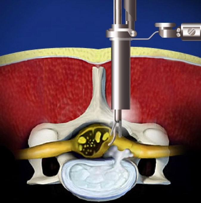 - Endoscopic Discectomy is a procedure used to remove damaged disc material in the spine. It is a minimally invasive technique that unlike the conventional procedure does not involve major tissue injury. Instead, a small metal tube, the size of a pencil, is inserted into the herniated disc space under x-ray guidance. The tube serves as a passage for the surgical tools and a tiny camera (endoscope). Under the guidance of real-time x-ray image (fluoroscopy) and a magnified live video feed, the fragment of the disc pinching the nerve is removed.
