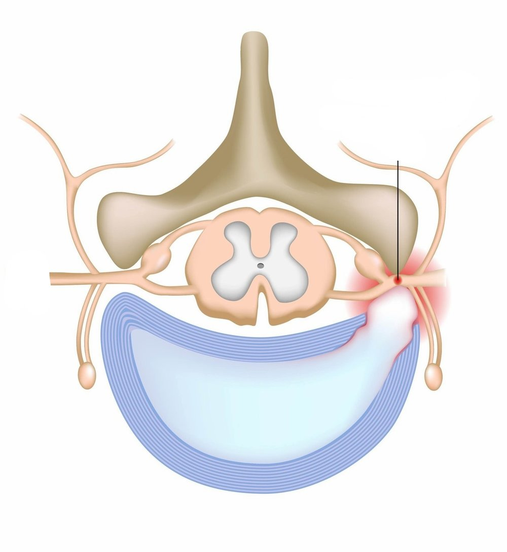 - A herniated disc occurs when some of the softer