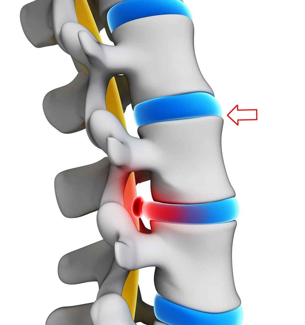 - It is one of the rubbery cushions (discs) between individual bones (vertebrae) that stack up to make your spine. A spinal disc is a little like a jelly donut, with soft center (nucleus pulposus within a tough exterior (annulus fibrosus).