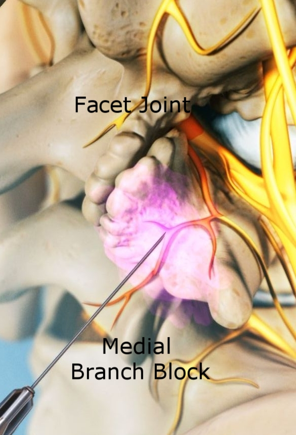 - For treatment of Facet Joint Disease, we initially perform Facet Joint Injection or Medial Branch Block with a local anesthetic or numbing medicine. As each joint is supplied by two medial branches, we usually conduct this block at 2 - 3 levels on the each side. This injection helps us identify the site of back or neck pain. This is usually followed by Radiofrequency Ablation (RFA). RFA is a procedure in which radiofrequency waves are used to produce heat on specifically identified Medial Branch. By generating heat around the nerve, its ability to transmit pain signals to the brain is destroyed, thus ablating the nerve.
