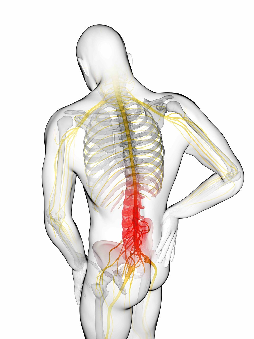 - Sciatica is a set of symptoms including pain caused by general compression or irritation of one of five spinal nerve roots (L4 to S3) of sciatic nerve.Symptoms include: - Lower back pain- Buttock pain, and numbness- Pain or weakness in various parts of the leg and foot.-
