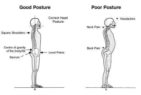 posture_1
