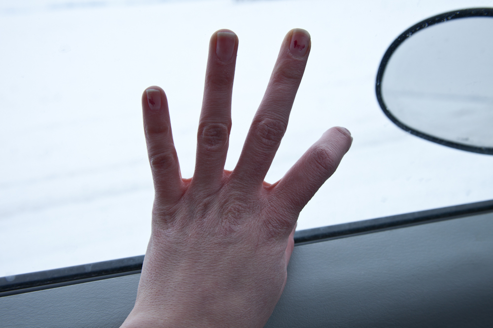 My hand after photographing in the snow [from the archives, South Dakota, December 24, 2010]
