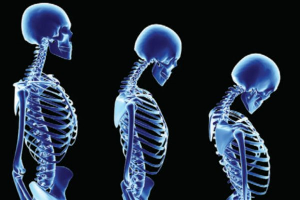 MINERAL LOSS EFFECT ON THE BONE STRUCTURE OVER TIME CALLED OSTEOPOROSIS
