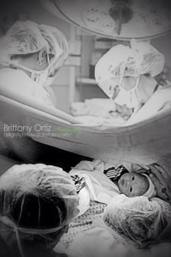 Doula supported cesarean.  Photos by Brittany Ortiz