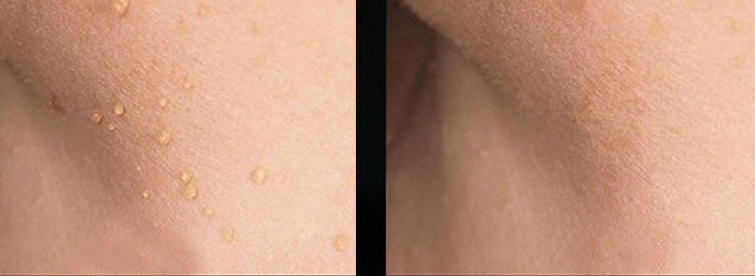 What Are Skin Tags And How To Remove Them Moyal Therapies