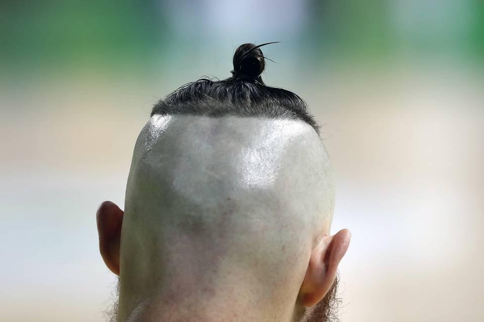 อารอน เบนส์ นักบาสทีมชาติออสเตรเลีย เจ้าของความสูง 2เมตรกว่า สไตล์หัวเค้าด้วยทรงแมนบัน โกนที่เหลือซะเกลี้ยง เหลือเฉพาะจุกด้านบน
