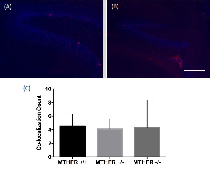 Figure 2. Combined images of the co-localization of PH3 and DAPI immunofluorescence staining in the dentate gyrus of a (A) wild-type MTHFR mouse (+/+) and (B) homozygous knockout MTHFR mouse (-/-). 200X magnification. Scale bar 50µm. Mean co-localization count in the dentate gyrus of MTHFR knockout mice and controls (C). No statistically significant differences were viewed ( F (2,8) = 0.03, p = 0.974). Standard deviations are represented by the standard deviation bars attached to each column.