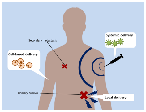 Figure 1. Strategies for delivering therapeutic genes to target areas.  Systemic delivery systems include viral vectors, liposomes, and hydrogels, all of which are able to selectively target malignant tissues without harming healthy cells. These delivery systems travel throughout the body and can therefore kill small metastases as well as the primary tumour. Local delivery systems include tissue particle bombardment and electroporation, which may have less severe side effects than systemic delivery systems but cannot target smaller tumours. Cell-based systems confer long-lasting genetic changes which can protect healthy tissues from the harmful effects of chemotherapy and radiotherapy.