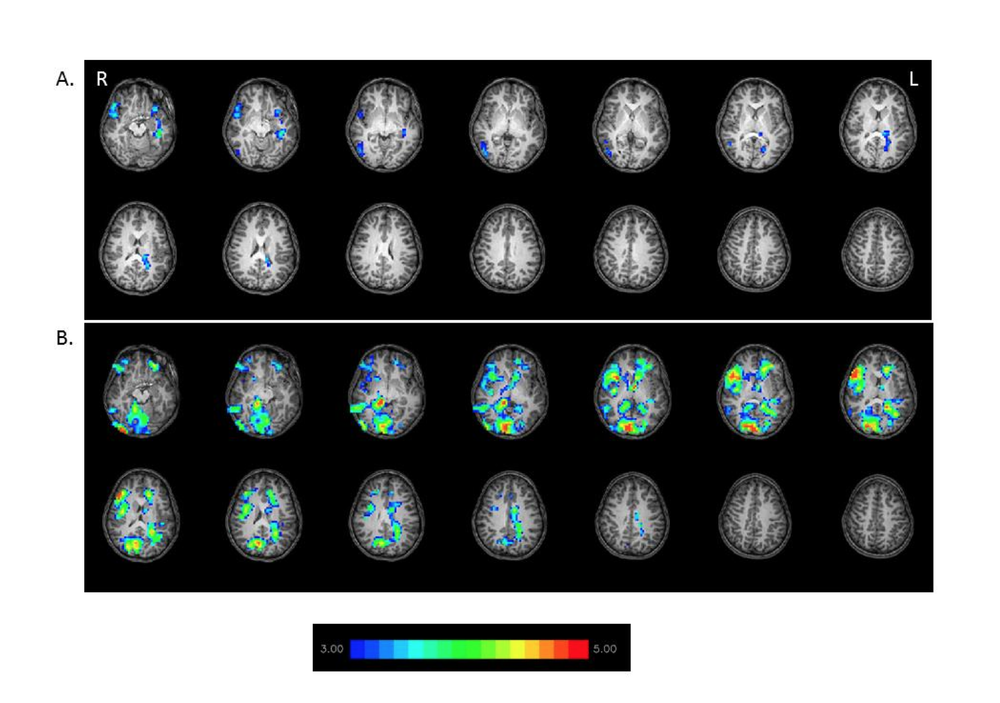 Figure 1:  Differences between children with dyslexia and typical readers in words reading in fMRI (while using a contrast of words > pseudohomophones). T-test analysis for the brain activation of the two groups was performed. The analysis (p < .001, corrected) shows that a typical readers are using their left side of their brain more intensively, while individuals with dyslexia show more right-lateralized spread activation and greater activation in the frontal and occipital regions. Slice thickness is 5mm for these contiguous slices. Slices range from z=22 to z=35 in the Talairach frame. The hot color represents a more intense activation