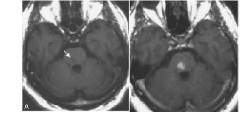 Left - Non-enhanced T1-weighted image brainstem infarct (arrow) Right - Images 48 h (D) following SPIO infusion Image courtesy of: Annals of Biomedical Engineering, Vol. 34, No. 1, January 2006 pp. 23–38.
