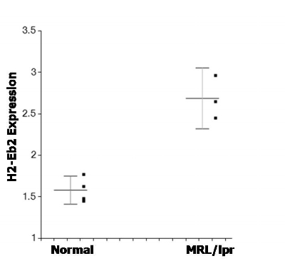 Figure 9. Elevated expression of histocompatibility complex II antigen (H2-Eb2) in MRL/lpr lacrimal acinar cells as compared to normal acinar cells. Gene expression is expressed as log2 compared to reference standard. The difference in levels of H2-Eb2 expression is significant (p=0.0032).