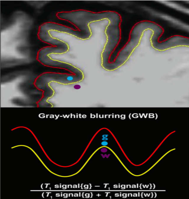 Figure 1. Computing GWB: Sampling points on T1-weighted MPRAGE image with gray-white (GW) junction surface (yellow line) and pial surface (red line).  The blue dot represents the sampling location of the gray matter intensity value at 0.5mm into the gray matter relative to the GW junction. The purple dot shows the sampling location of the white matter intensity value at 0.5mm into the white matter relative to the GW junction (adapted from Blackmon et al., 2014).