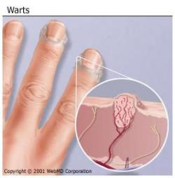 Figure 1. Warts affect three out of every four people, making them the most common dermatological complaint after acne. Courtesy of WebMD, Hunterdon Healthcare System.)