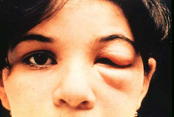 Acute Chagas Disease in a young child. The eye sign of Romana is present. This is frequently seen in acute cases and is presumed to mark the point of entry of the parasite. Credit: WHO/TDR