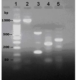 Figure 2. PCR amplification of S. tenjimariensis DNA using designed primers. Lanes: 1, 100 bp DNA ladder; 2, DOI; 3, AMT; 4, Alpha amylase; 5, 16S rDNA.