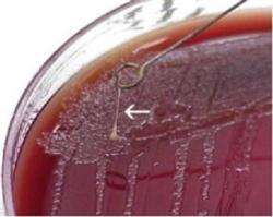 Figure 3. Yersinia pestis colonies on a culture plate following isolation from a cat with plague. Colonies are characteristically sticky (arrow). Image Courtesy: Wyoming Animal Health and Disease Information Network.